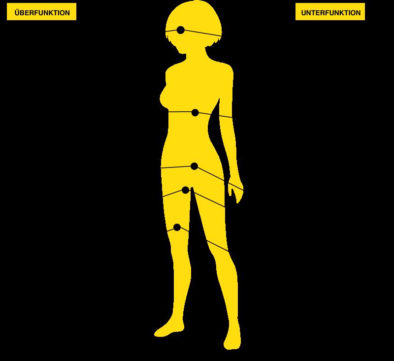 Schilddrüsenunterfunktion Symptome